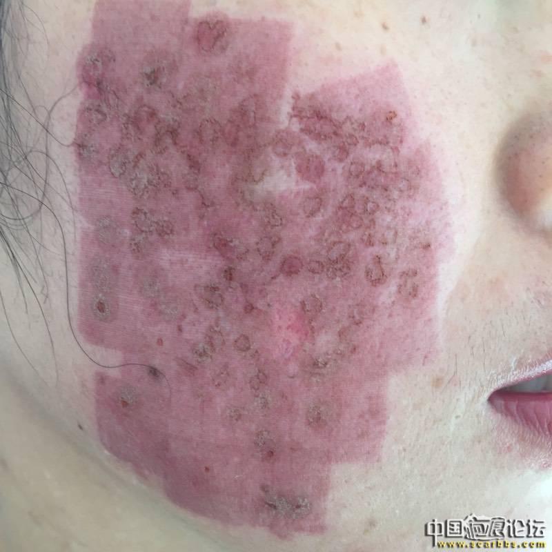 首次切除拆线7周后第一次点阵+磨削70-疤痕体质图片_疤痕疙瘩图片-中国疤痕论坛