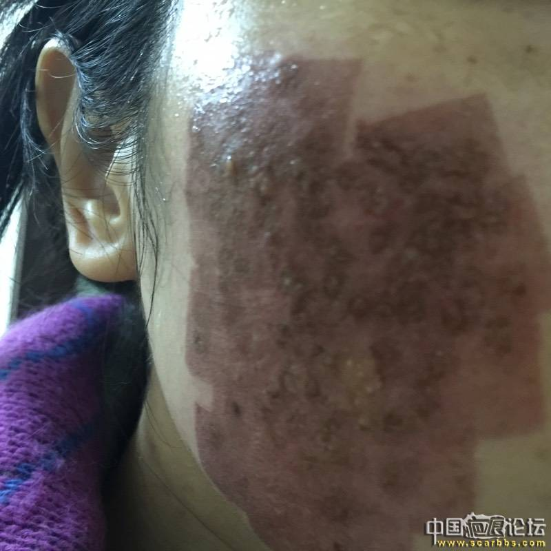 首次切除拆线7周后第一次点阵+磨削66-疤痕体质图片_疤痕疙瘩图片-中国疤痕论坛