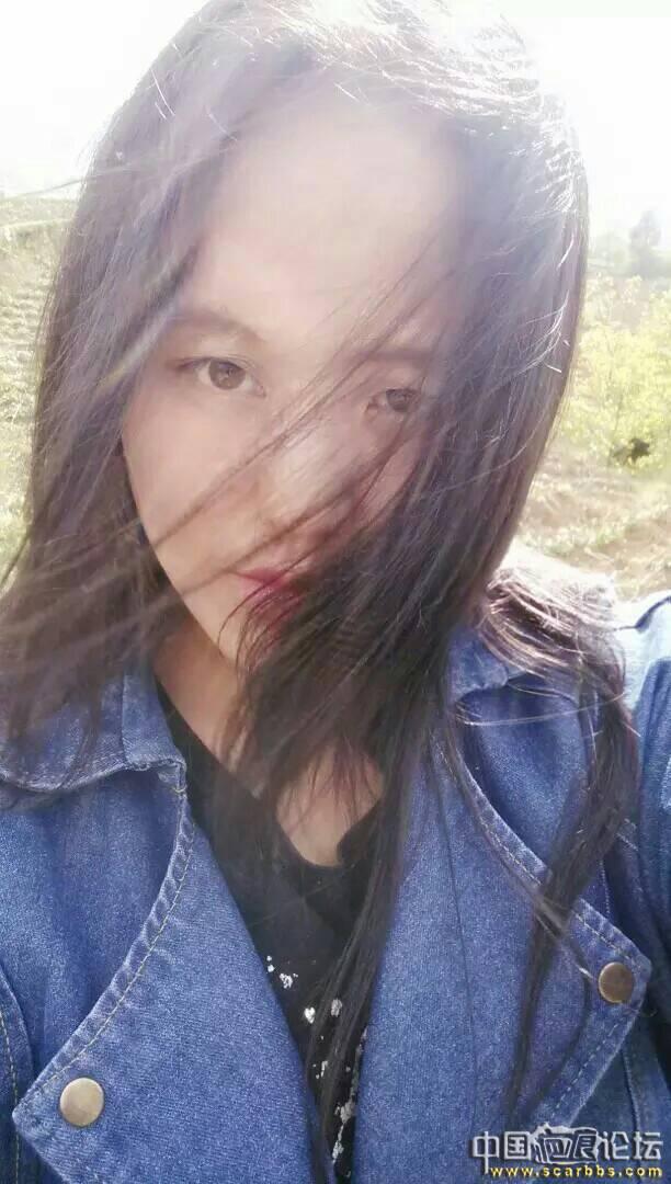 找个男朋友90-疤痕体质图片_疤痕疙瘩图片-中国疤痕论坛