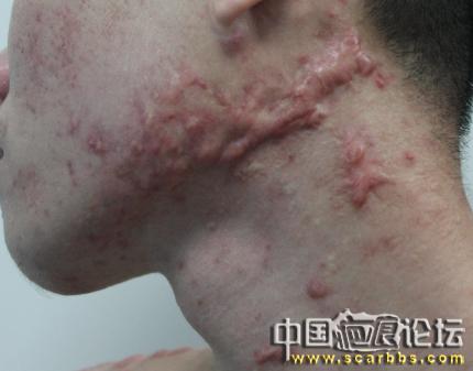 我相信疤痕疙瘩一定能治好 做什么,广州,疤痕,郑州,网上,