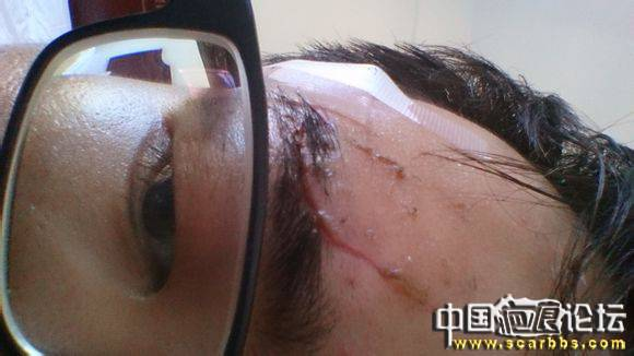 1年零2月,大家看看我恢复得怎样了65-疤痕体质图片_疤痕疙瘩图片-中国疤痕论坛