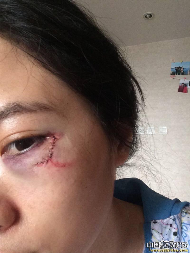 眼角外伤4个多月了,你需要的是强大的心灵!78-疤痕体质图片_疤痕疙瘩图片-中国疤痕论坛