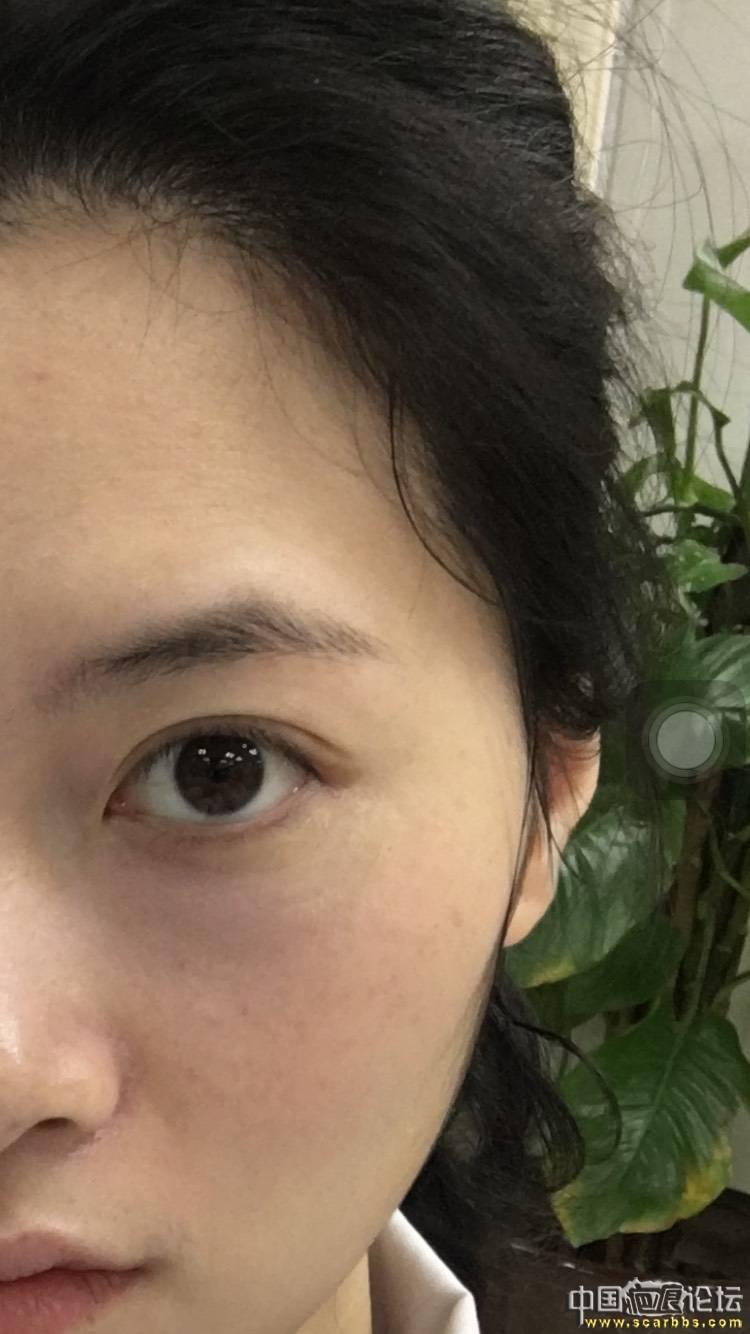 眼角外伤4个多月了,你需要的是强大的心灵!18-疤痕体质图片_疤痕疙瘩图片-中国疤痕论坛
