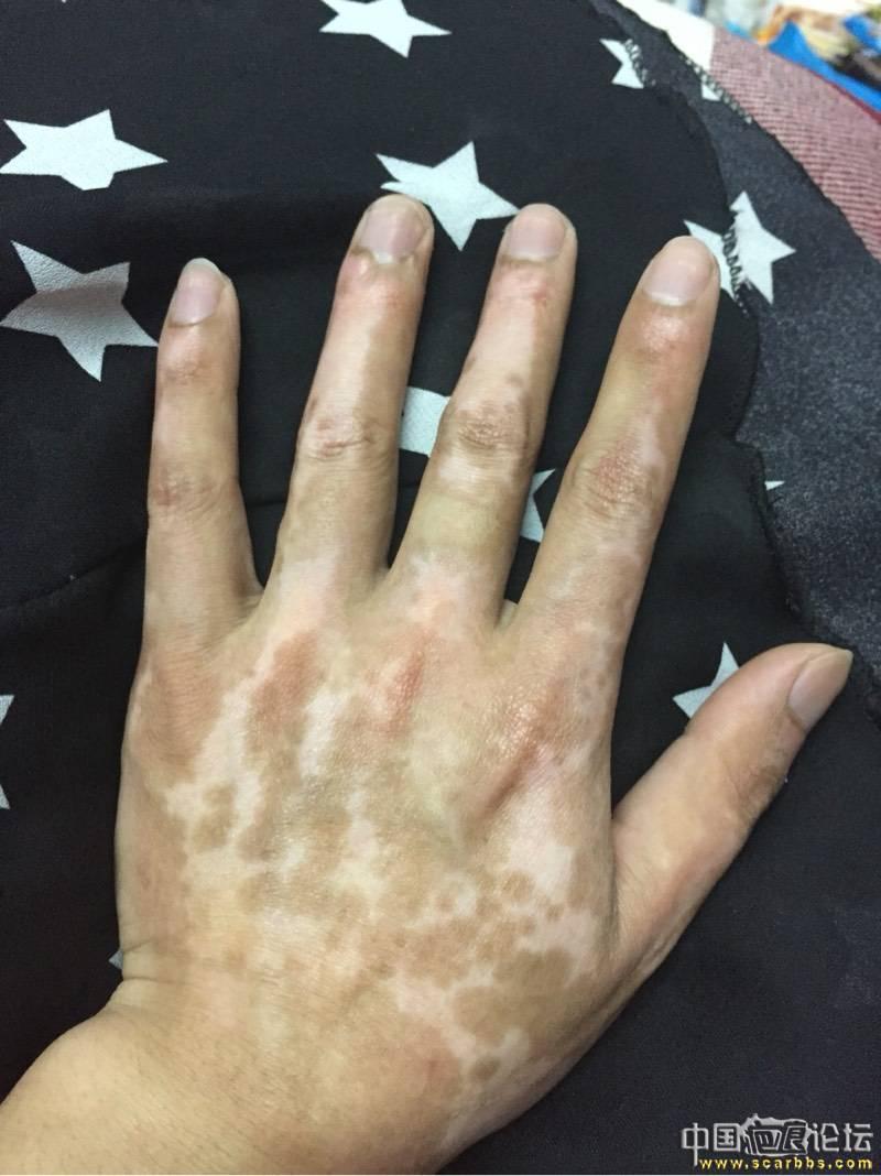 一年左右时间的手部烧伤,如何修复?