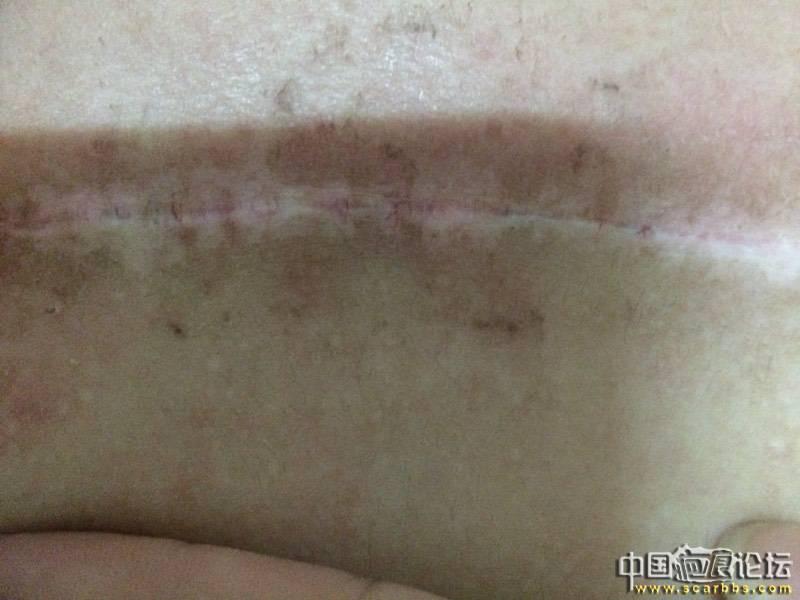 胸口疤痕疙瘩十年之久终于去除了 胸口疤痕疙瘩,手术治疗,放疗,
