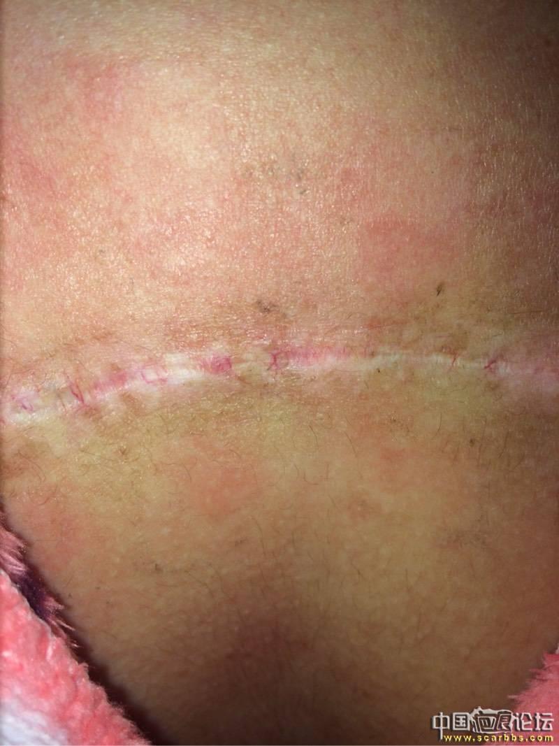 胸口疤痕疙瘩十年之久终于去除了43-疤痕体质图片_疤痕疙瘩图片-中国疤痕论坛