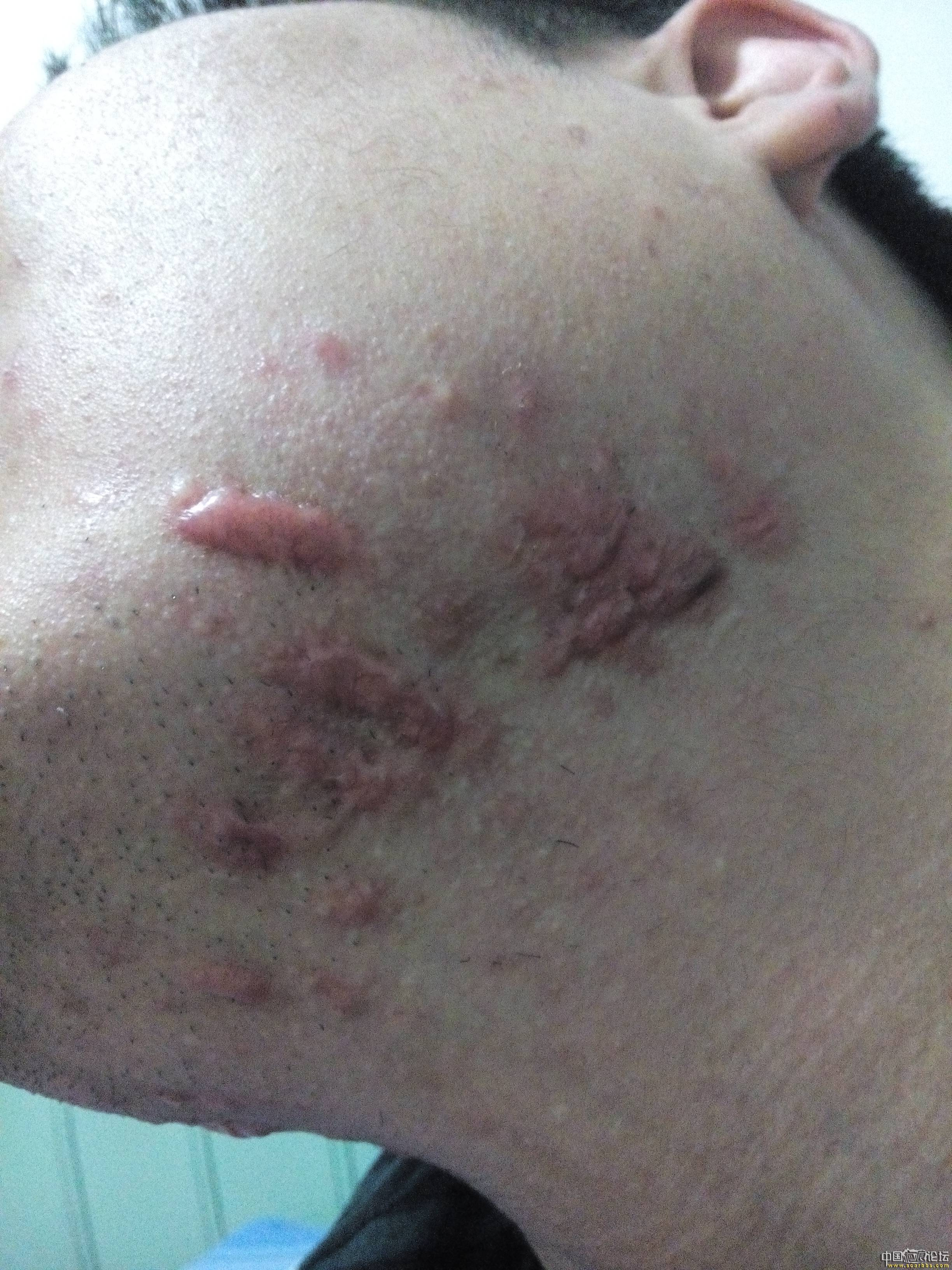 陪伴4年的腮部疤痕疙瘩治疗效果分享62-疤痕体质图片_疤痕疙瘩图片-中国疤痕论坛