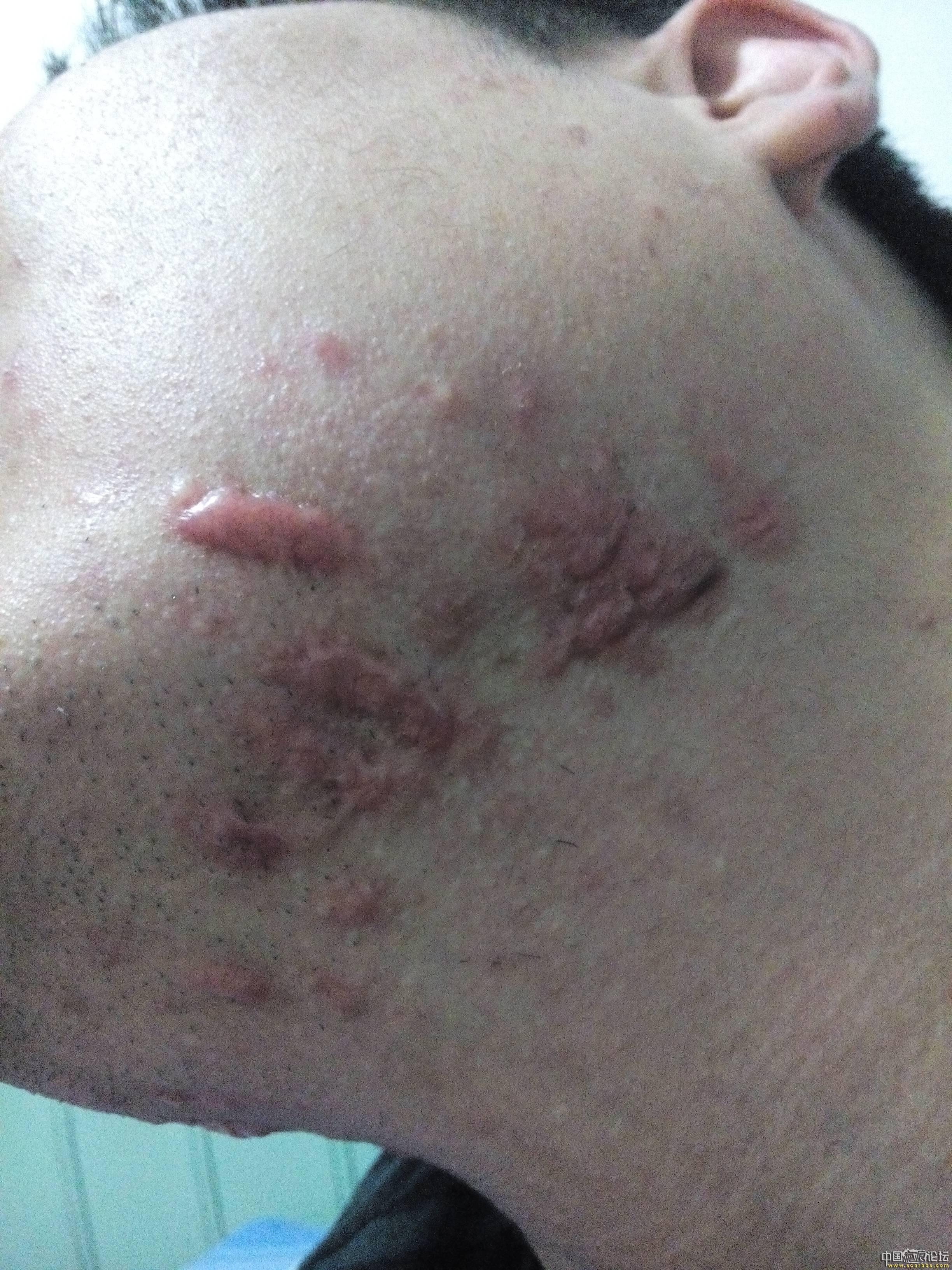 陪伴4年的腮部疤痕疙瘩治疗效果分享10-疤痕体质图片_疤痕疙瘩图片-中国疤痕论坛