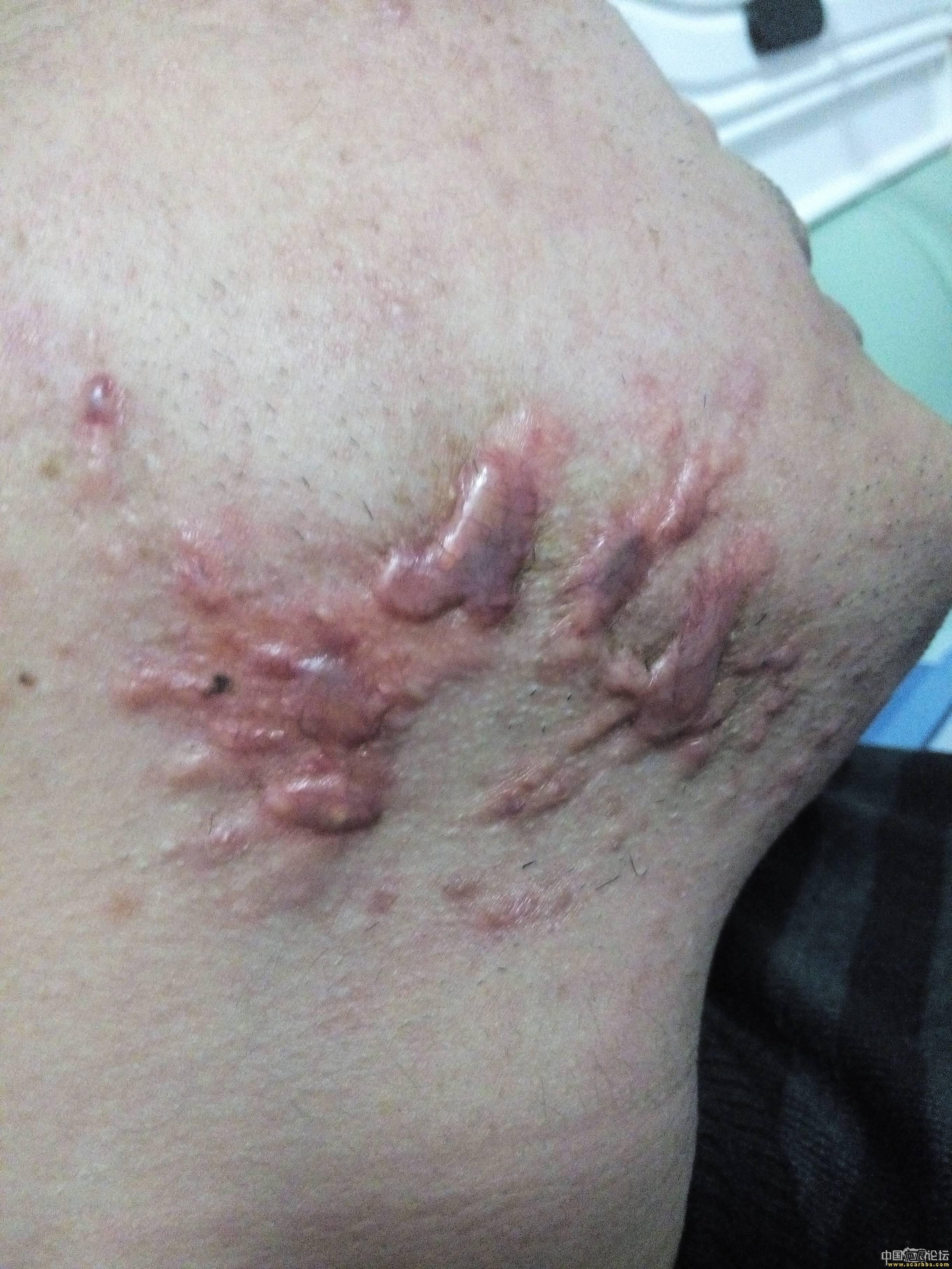 陪伴4年的腮部疤痕疙瘩治疗效果分享53-疤痕体质图片_疤痕疙瘩图片-中国疤痕论坛