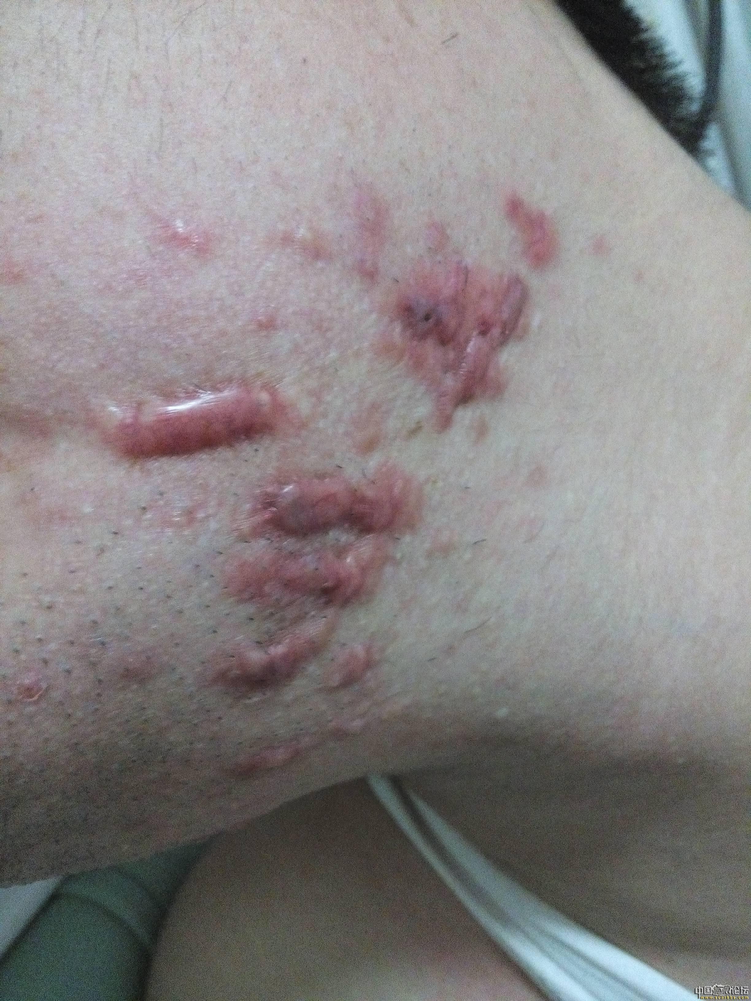 陪伴4年的腮部疤痕疙瘩治疗效果分享75-疤痕体质图片_疤痕疙瘩图片-中国疤痕论坛