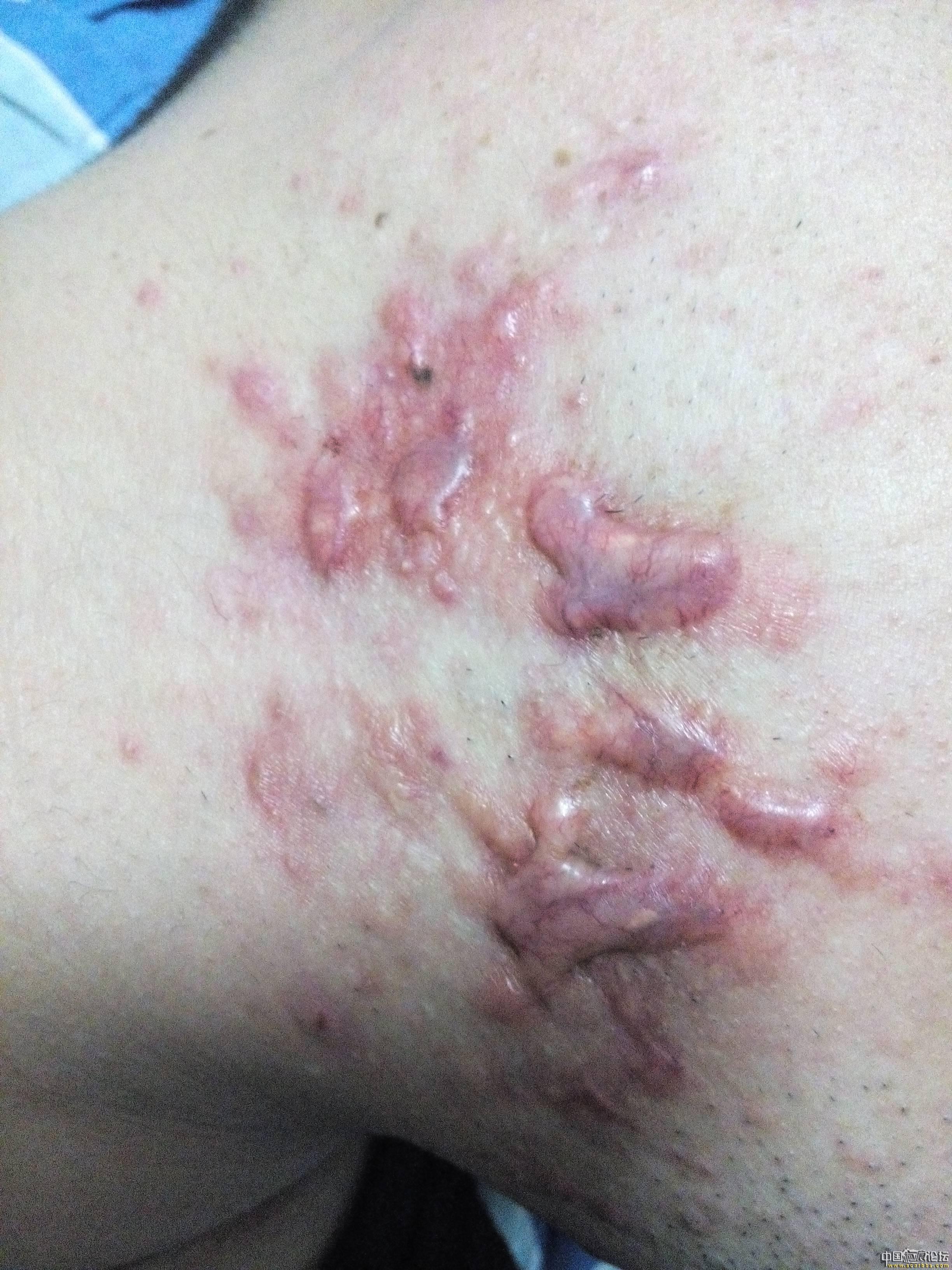 陪伴4年的腮部疤痕疙瘩治疗效果分享44-疤痕体质图片_疤痕疙瘩图片-中国疤痕论坛