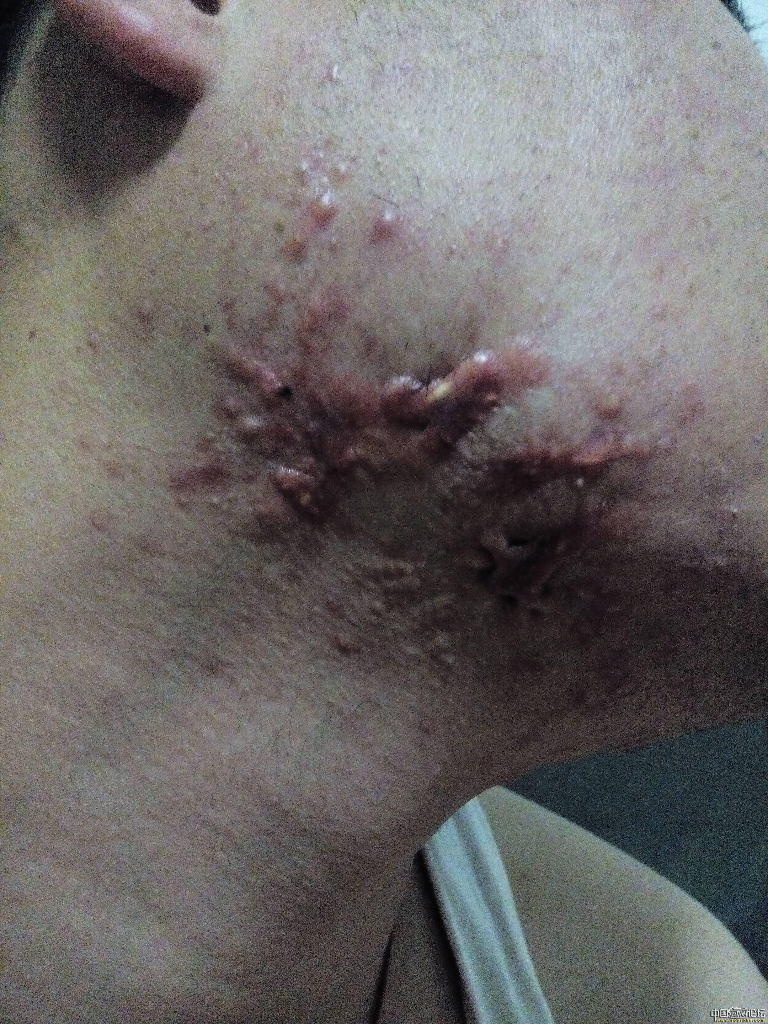 陪伴4年的腮部疤痕疙瘩治疗效果分享49-疤痕体质图片_疤痕疙瘩图片-中国疤痕论坛