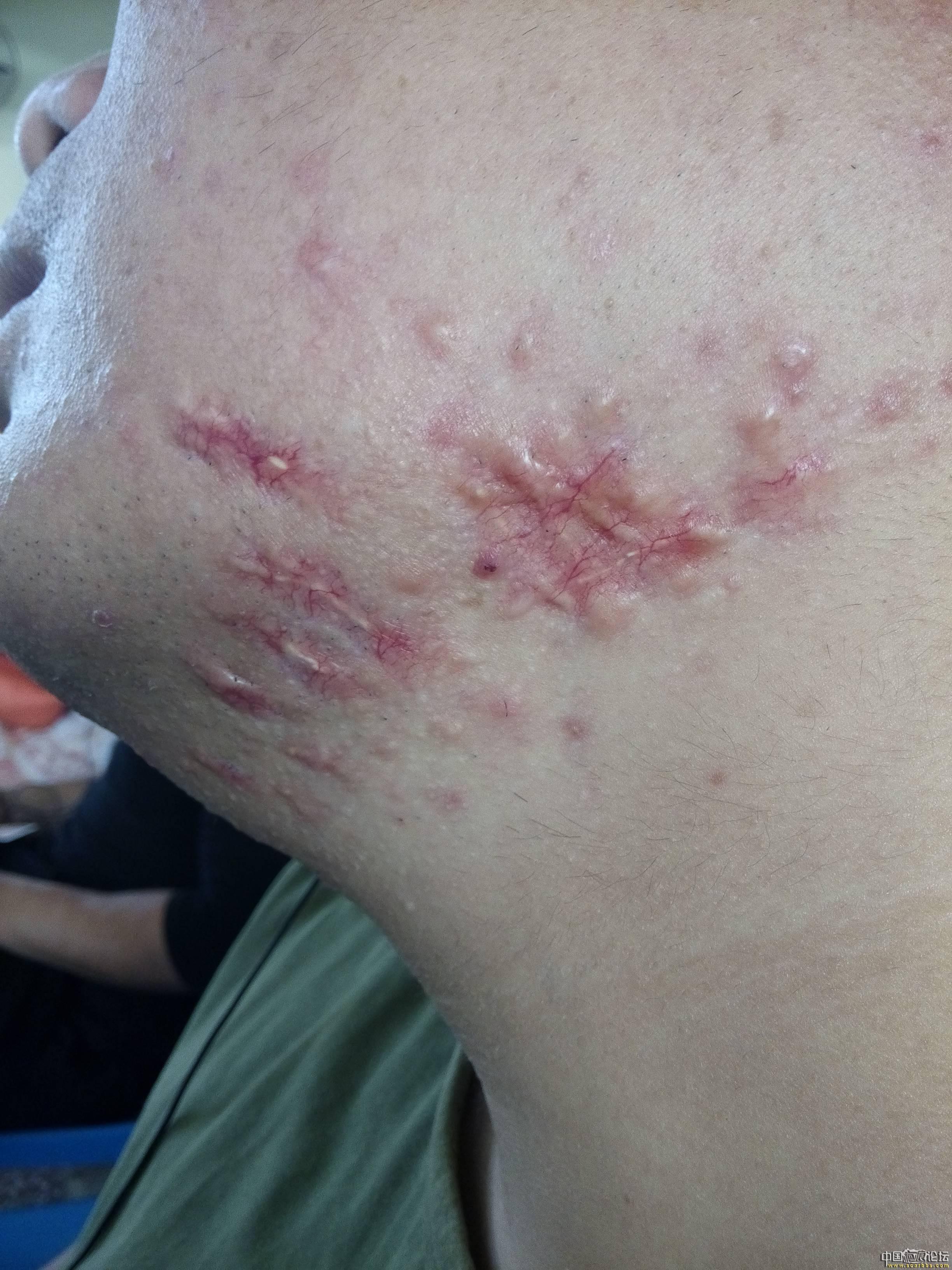 陪伴4年的腮部疤痕疙瘩治疗效果分享42-疤痕体质图片_疤痕疙瘩图片-中国疤痕论坛