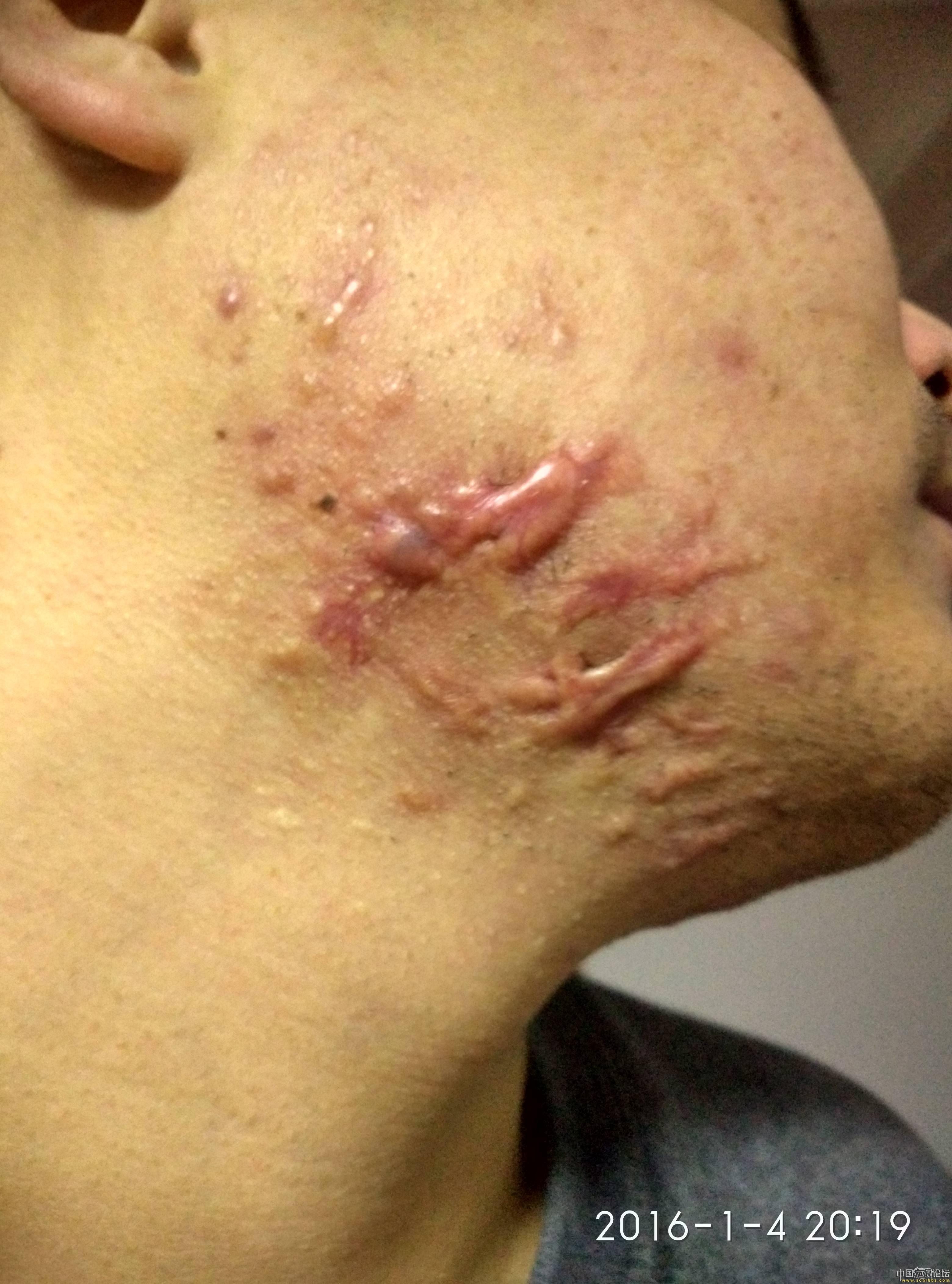 陪伴4年的腮部疤痕疙瘩治疗效果分享48-疤痕体质图片_疤痕疙瘩图片-中国疤痕论坛