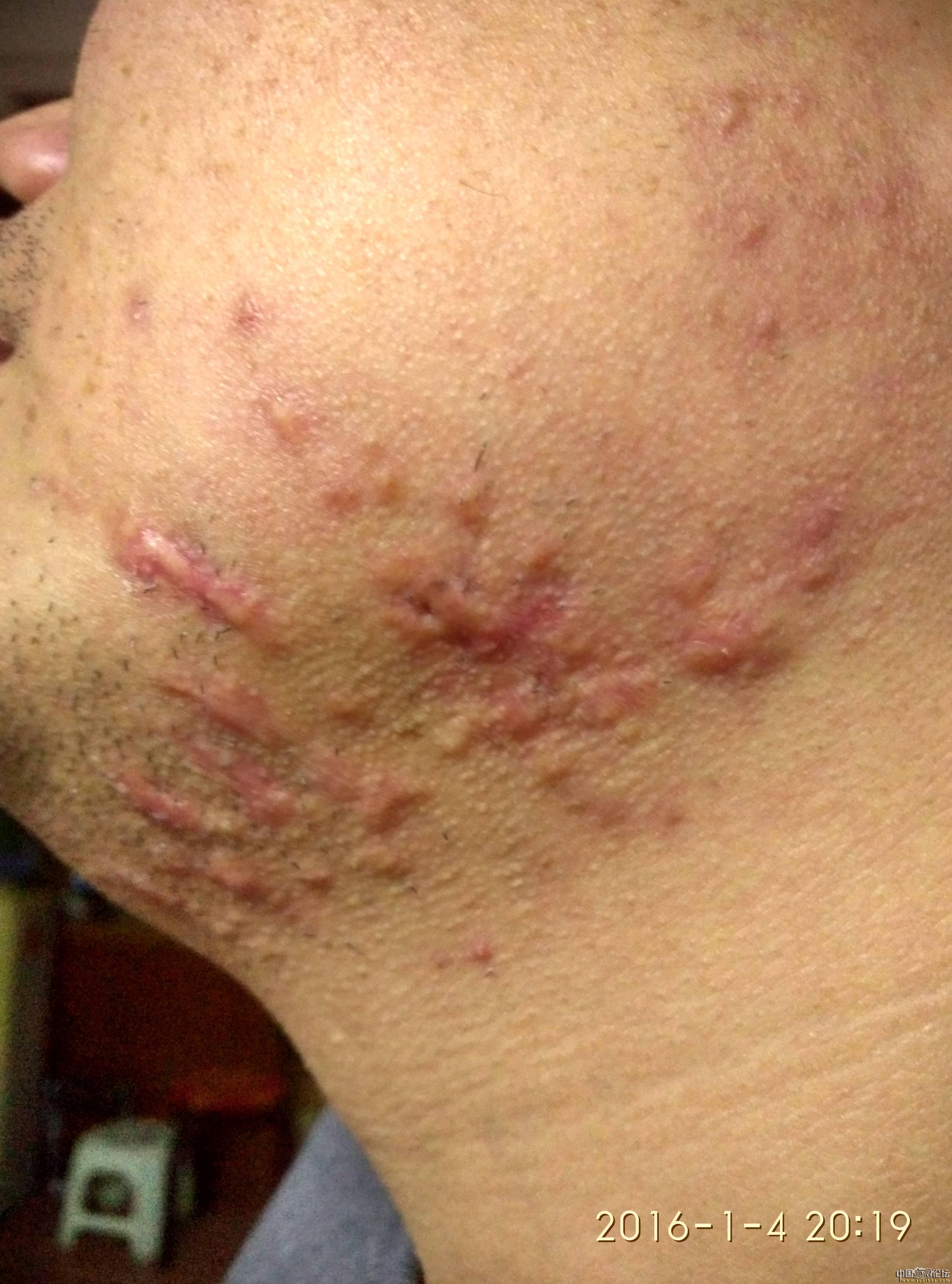 陪伴4年的腮部疤痕疙瘩治疗效果分享23-疤痕体质图片_疤痕疙瘩图片-中国疤痕论坛