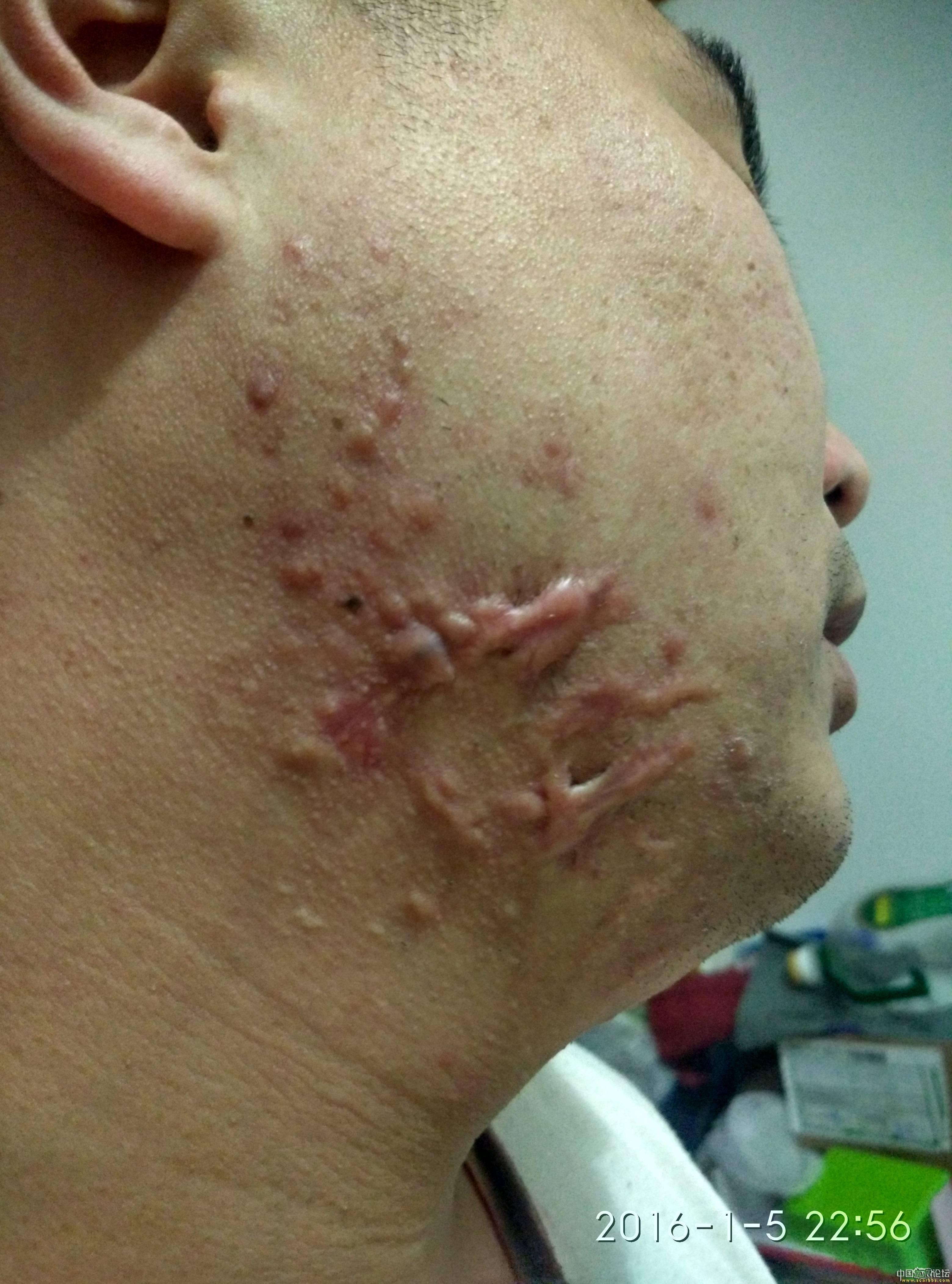 陪伴4年的腮部疤痕疙瘩治疗效果分享17-疤痕体质图片_疤痕疙瘩图片-中国疤痕论坛