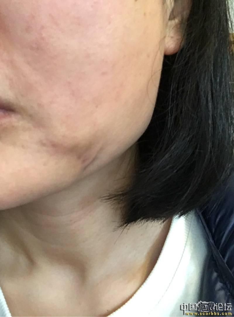 面部感染后留下的疤痕,大家帮忙看看有什么好办法53-疤痕体质图片_疤痕疙瘩图片-中国疤痕论坛