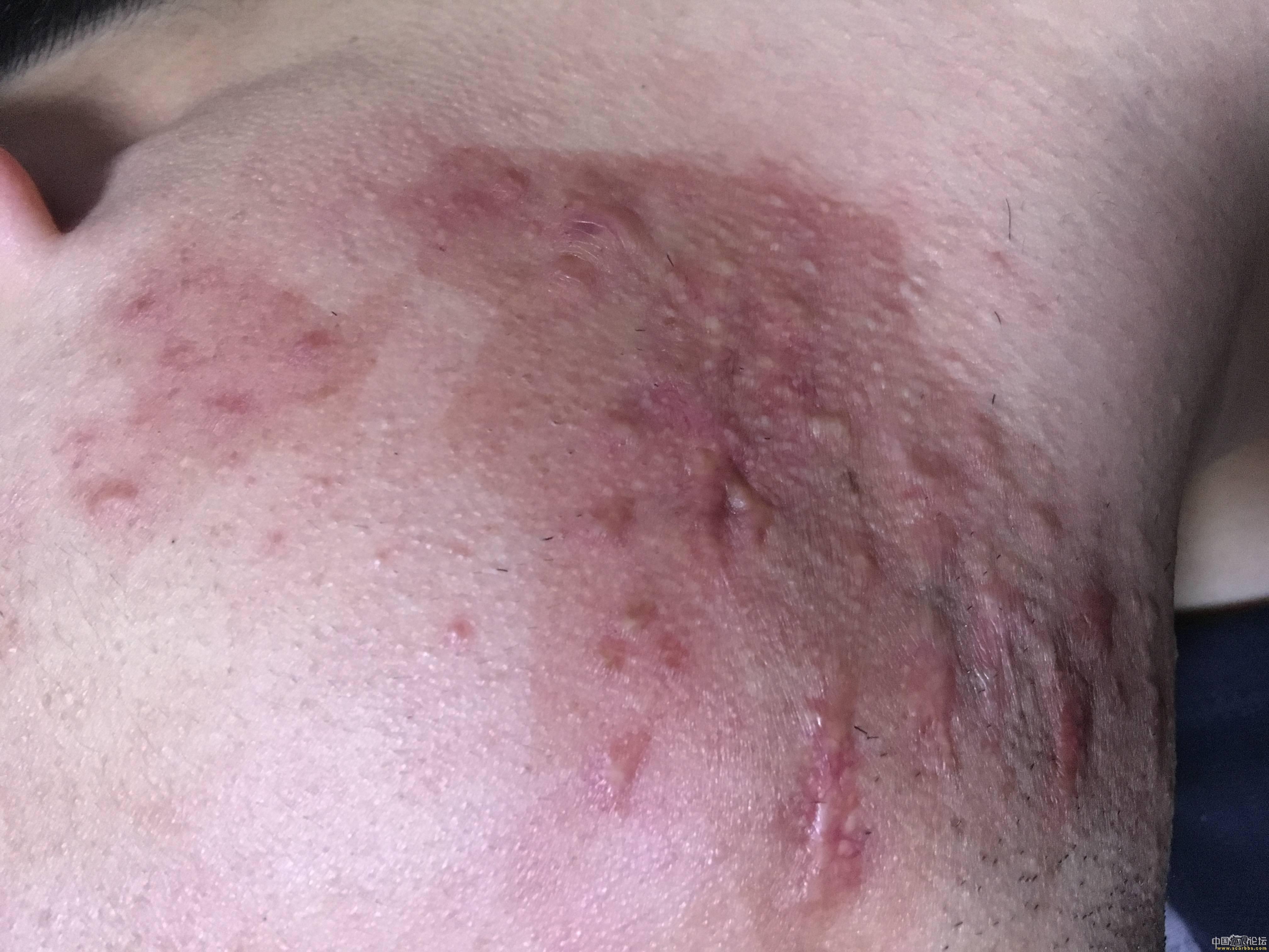 陪伴4年的腮部疤痕疙瘩治疗效果分享90-疤痕体质图片_疤痕疙瘩图片-中国疤痕论坛