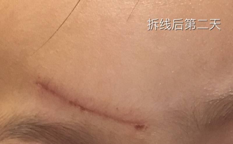 2岁女儿额头磕伤3cm抗疤纪录,一切都会好起来的56-疤痕体质图片_疤痕疙瘩图片-中国疤痕论坛