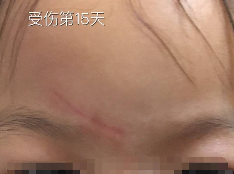 2岁女儿额头磕伤3cm抗疤纪录,一切都会好起来的59-疤痕体质图片_疤痕疙瘩图片-中国疤痕论坛