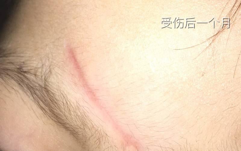 2岁女儿额头磕伤3cm抗疤纪录,一切都会好起来的29-疤痕体质图片_疤痕疙瘩图片-中国疤痕论坛