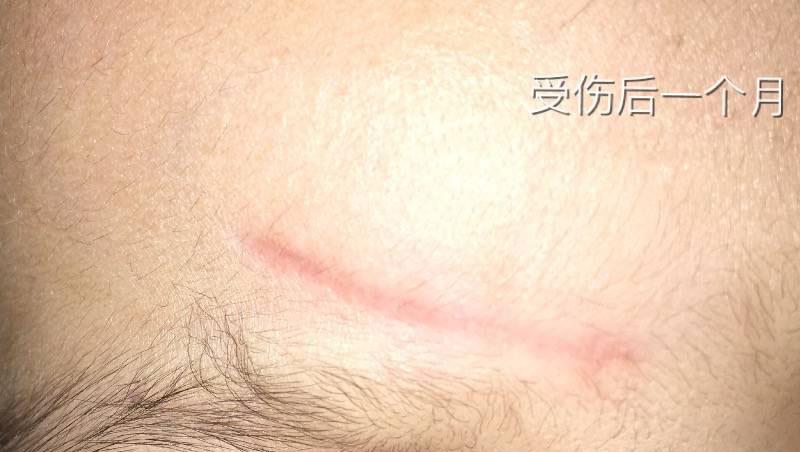2岁女儿额头磕伤3cm抗疤纪录,一切都会好起来的94-疤痕体质图片_疤痕疙瘩图片-中国疤痕论坛