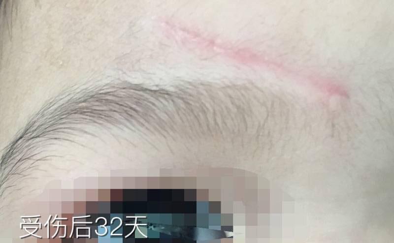 2岁女儿额头磕伤3cm抗疤纪录,一切都会好起来的9-疤痕体质图片_疤痕疙瘩图片-中国疤痕论坛