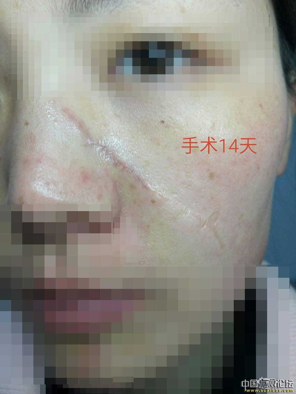 2.25九院刘伟手术治疗左面部刀伤疤痕 恢复记录