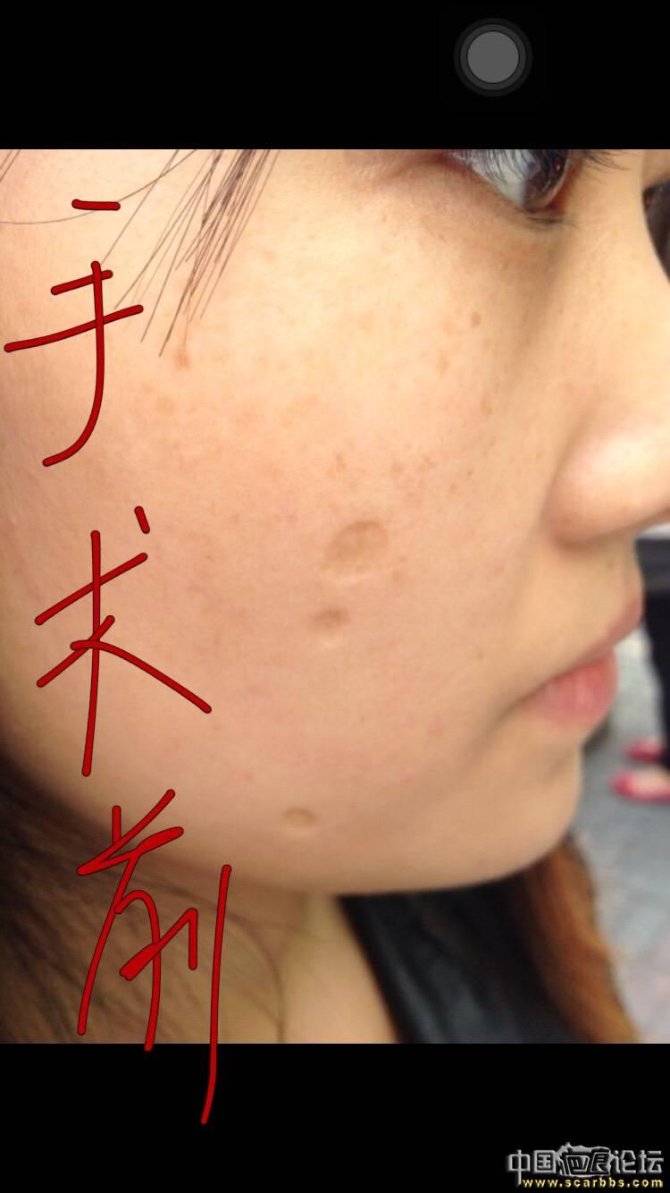 面部凹陷疤痕切除手术五个月效果分享!63-疤痕体质图片_疤痕疙瘩图片-中国疤痕论坛