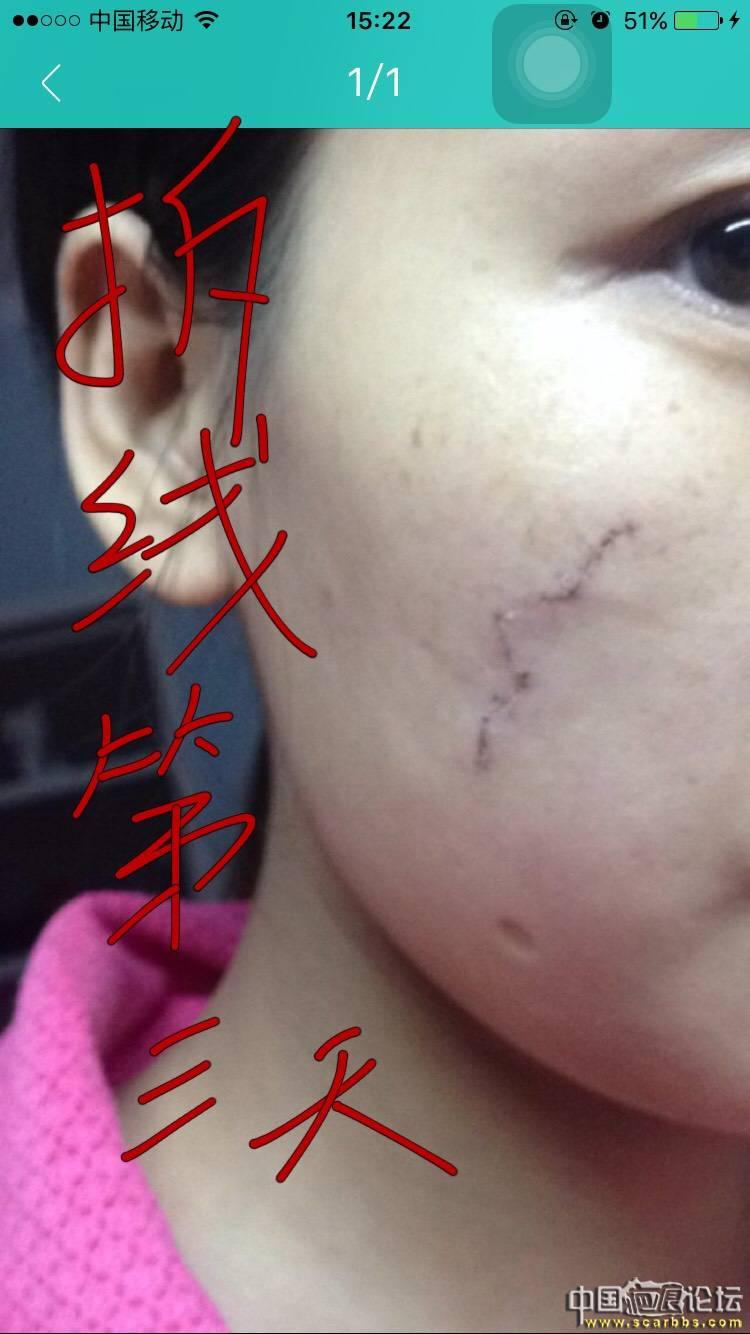 面部凹陷疤痕切除手术五个月效果分享!40-疤痕体质图片_疤痕疙瘩图片-中国疤痕论坛