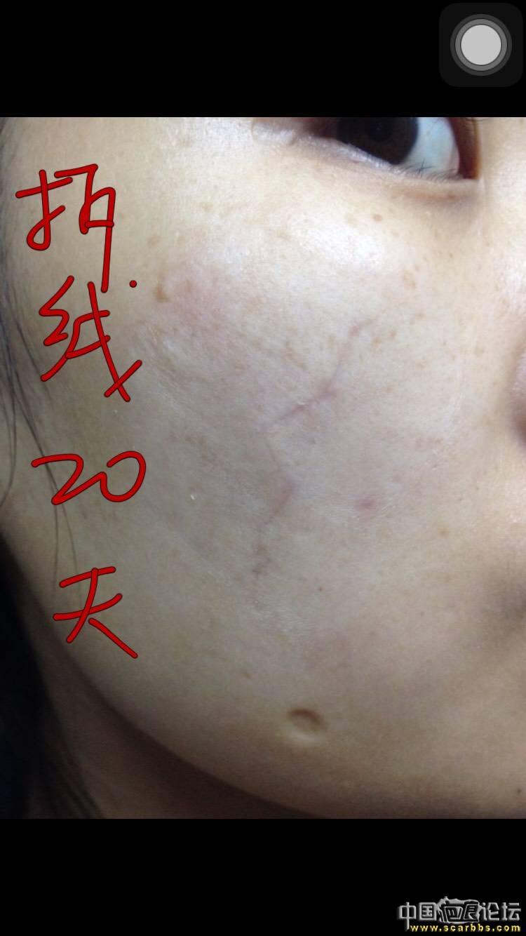 面部凹陷疤痕切除手术五个月效果分享!