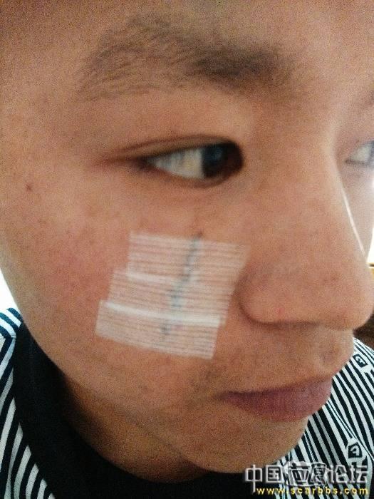 上海九院刘伟医生刚做完面部凹陷疤痕切除手术