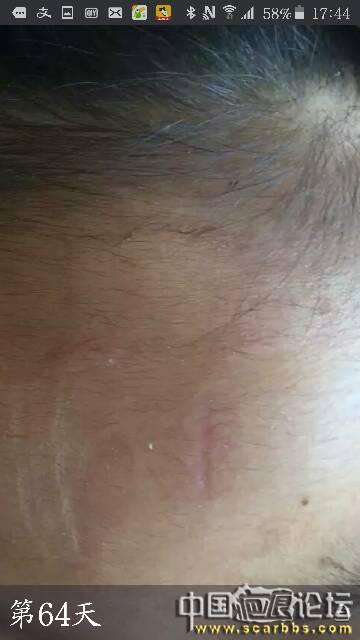 孩子额头受伤凹疤,九个多月后记录下恢复情况 额头凹陷疤痕,磕伤,微针治疗