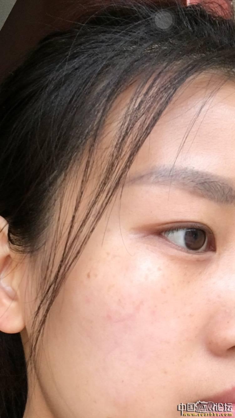面部凹陷疤痕切除手术五个月效果分享!17-疤痕体质图片_疤痕疙瘩图片-中国疤痕论坛