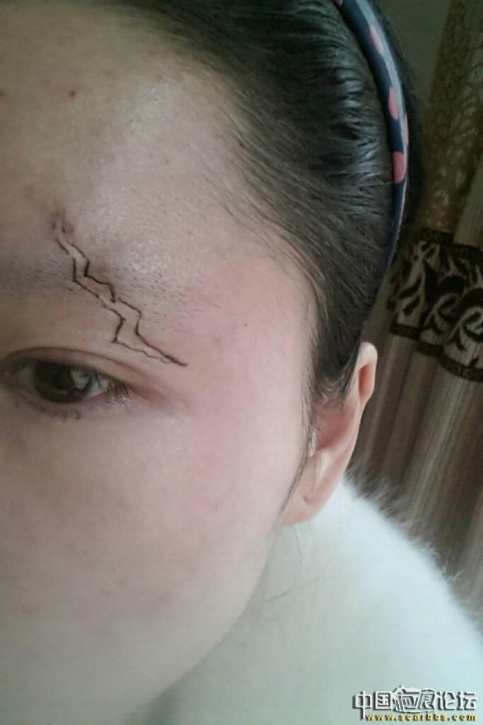 眉毛处凹陷性疤痕切缝手术,76-疤痕体质图片_疤痕疙瘩图片-中国疤痕论坛