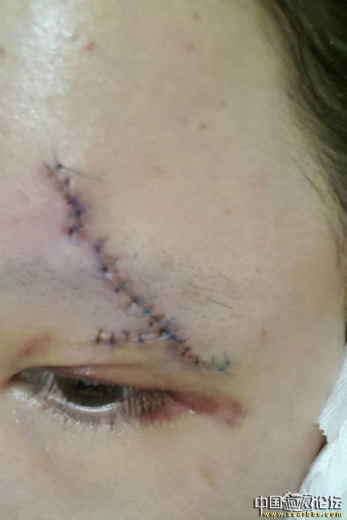眉毛处凹陷性疤痕切缝手术, 眉毛凹陷,凹陷疤痕,