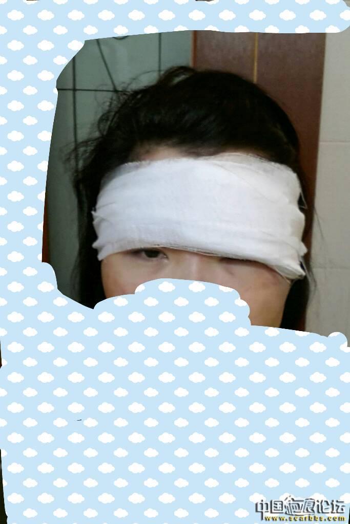 眉毛处凹陷性疤痕切缝手术,52-疤痕体质图片_疤痕疙瘩图片-中国疤痕论坛