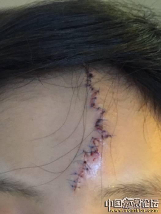 4月7号额头疤痕手术,发帖记录抗疤之路,加油