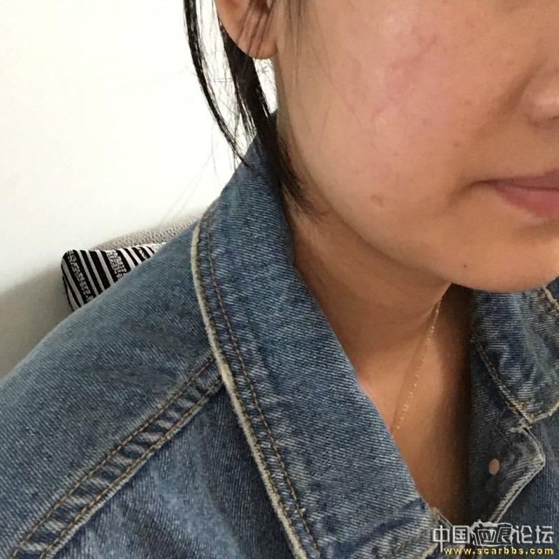面部凹陷疤痕切除手术五个月效果分享!61-疤痕体质图片_疤痕疙瘩图片-中国疤痕论坛