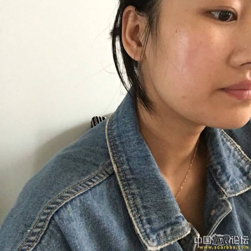 面部凹陷疤痕切除手术五个月效果分享!10-疤痕体质图片_疤痕疙瘩图片-中国疤痕论坛