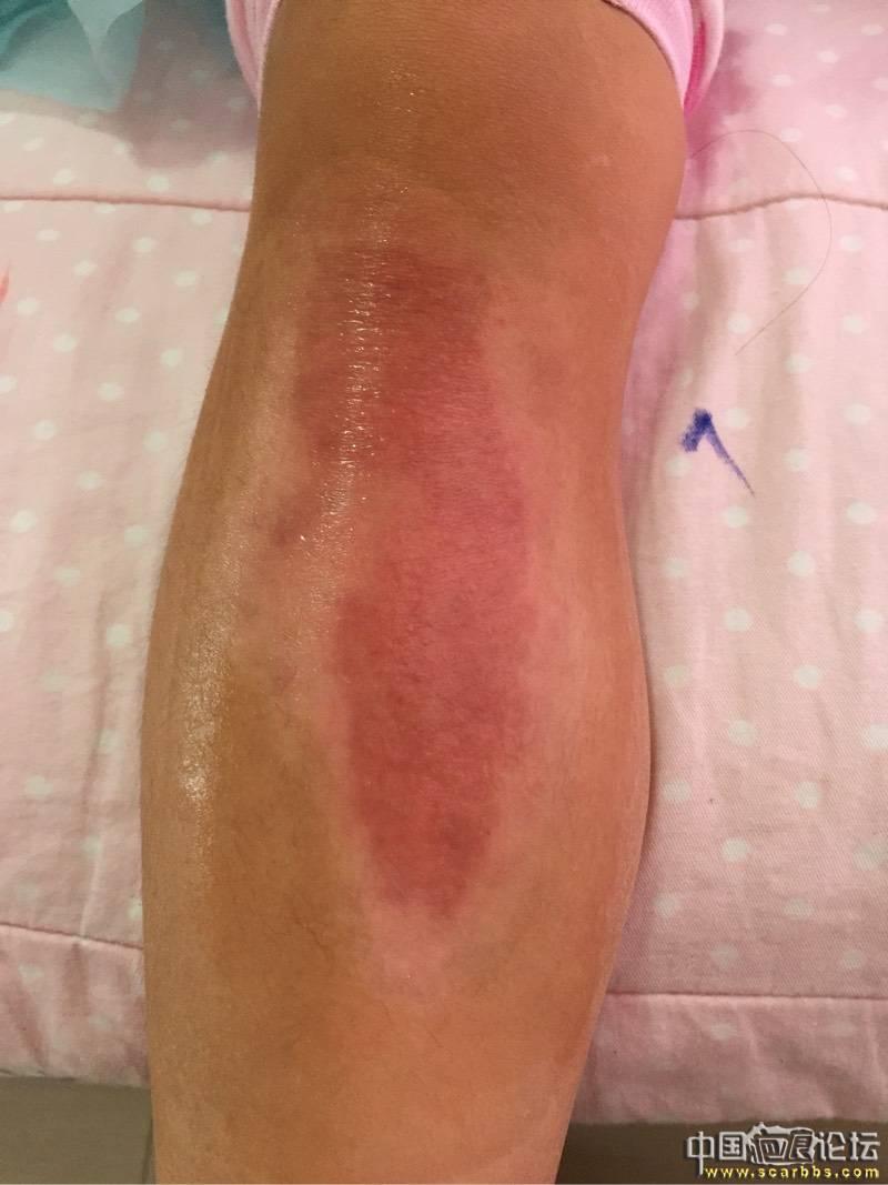 女儿烫伤抗疤8个月效果图6-疤痕体质图片_疤痕疙瘩图片-中国疤痕论坛