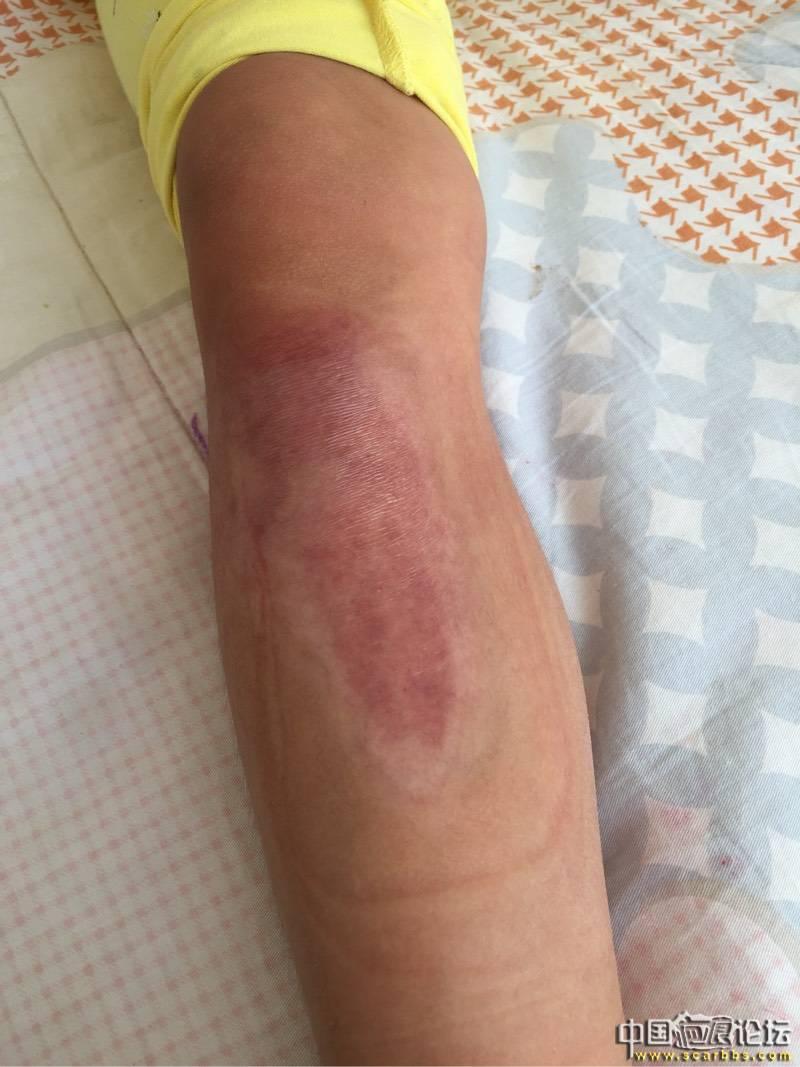女儿烫伤抗疤8个月效果图 烫伤疤痕,抗疤痕