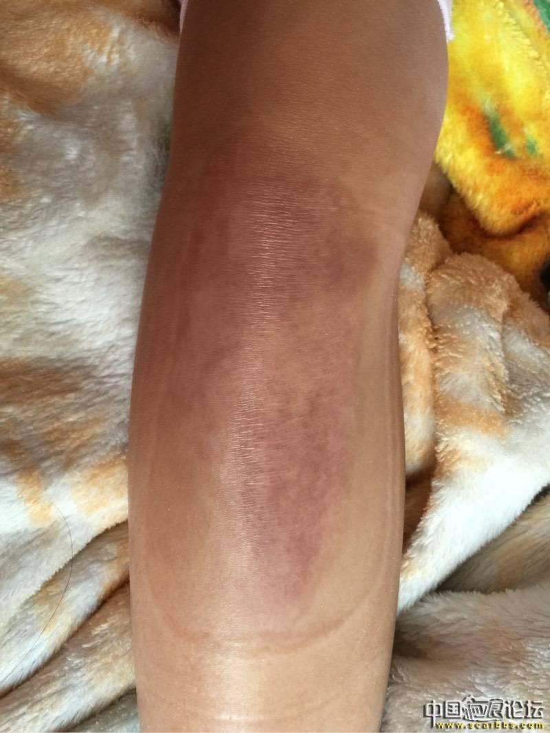女儿烫伤抗疤8个月效果图44-疤痕体质图片_疤痕疙瘩图片-中国疤痕论坛