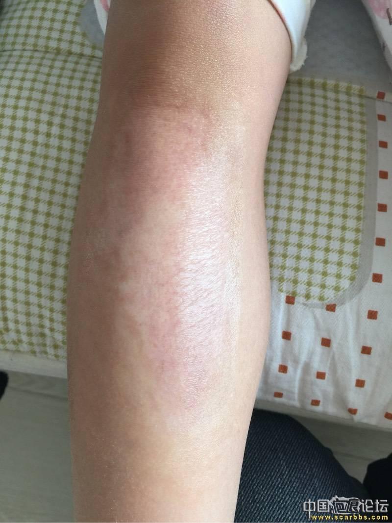 女儿烫伤抗疤8个月效果图30-疤痕体质图片_疤痕疙瘩图片-中国疤痕论坛