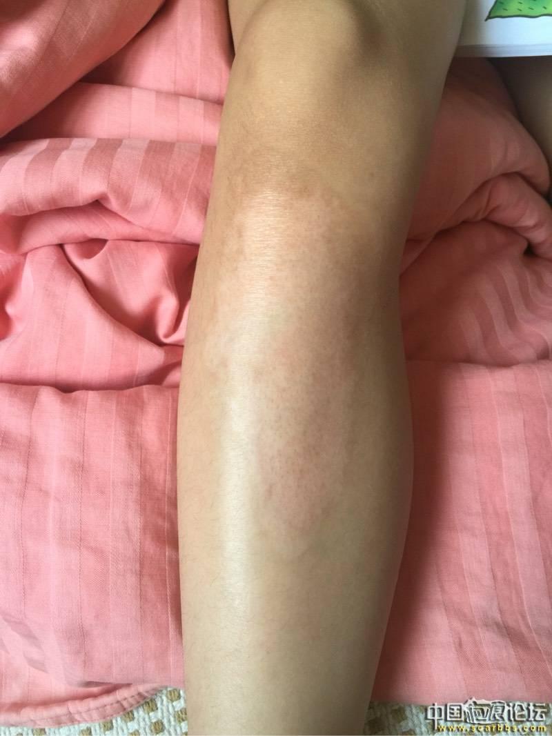 女儿烫伤抗疤8个月效果图84-疤痕体质图片_疤痕疙瘩图片-中国疤痕论坛
