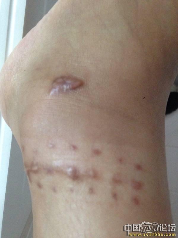 4月份的摔伤疤痕,记录我的祛疤过程20-疤痕体质图片_疤痕疙瘩图片-中国疤痕论坛