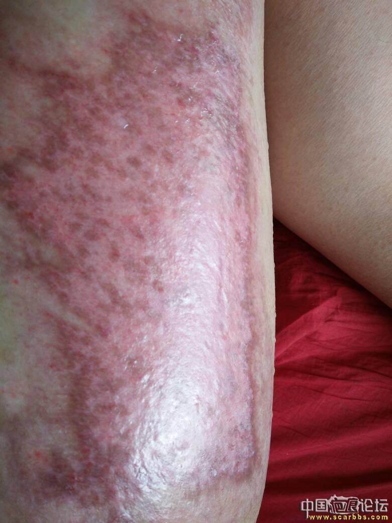 做个朋友,大腿烫伤好难过94-疤痕体质图片_疤痕疙瘩图片-中国疤痕论坛