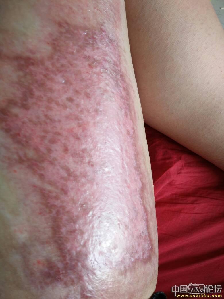 做个朋友,大腿烫伤好难过55-疤痕体质图片_疤痕疙瘩图片-中国疤痕论坛