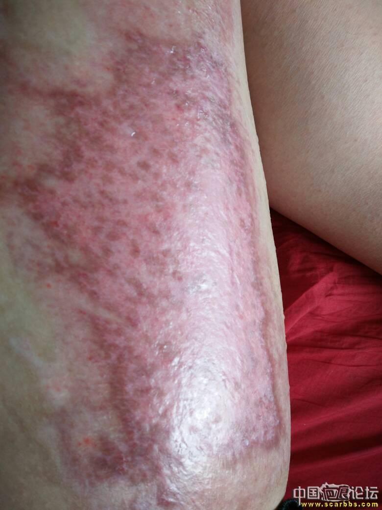 做个朋友,大腿烫伤好难过60-疤痕体质图片_疤痕疙瘩图片-中国疤痕论坛