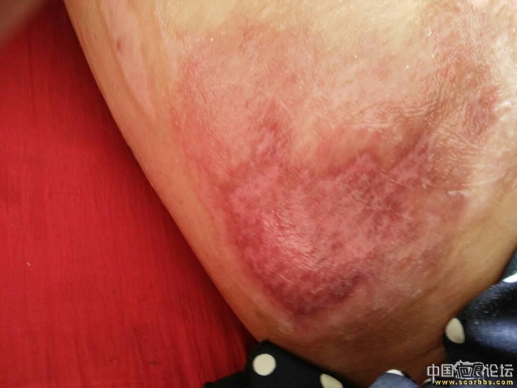 做个朋友,大腿烫伤好难过77-疤痕体质图片_疤痕疙瘩图片-中国疤痕论坛